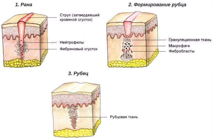 лечение рубцов