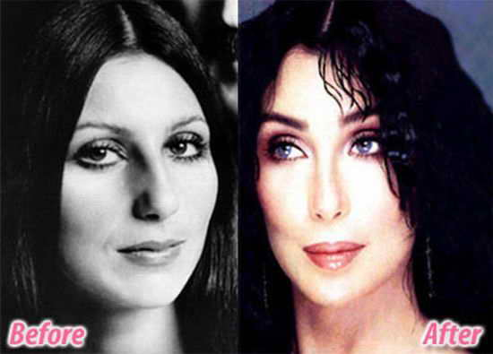 Шер до и после