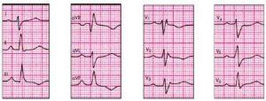 Гипертрофия правого желудочка сердца на ЭКГ