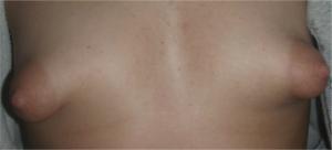 Фото проблемы женской груди