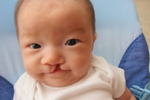 операция по устранению заячьей губы