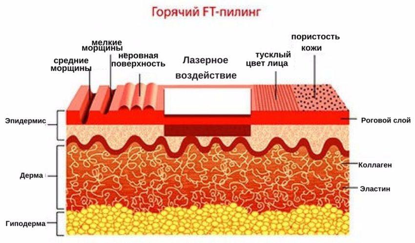 механизм воздействия на кожу