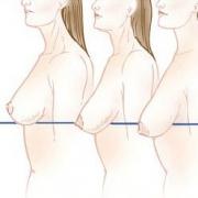 размеры провисания груди