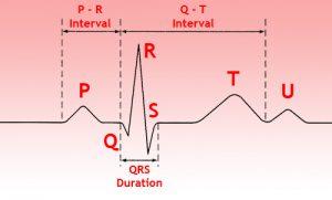 Расшифровка кардиограммы сердца