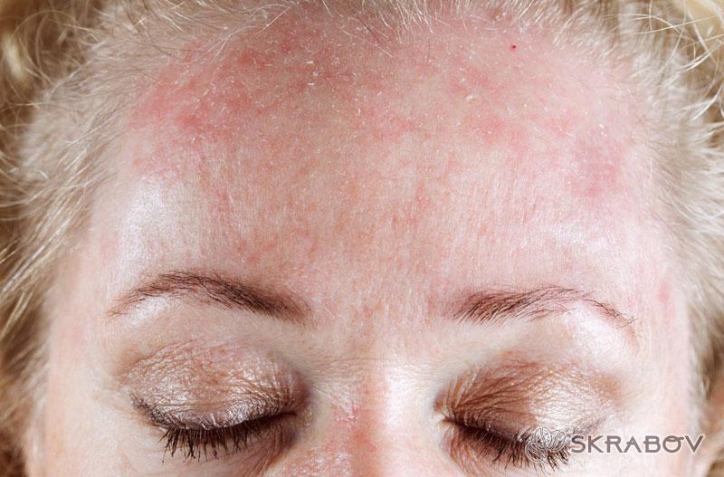 Как избавиться от аллергии на лице и не пропустить первые симптомы 10-3-1