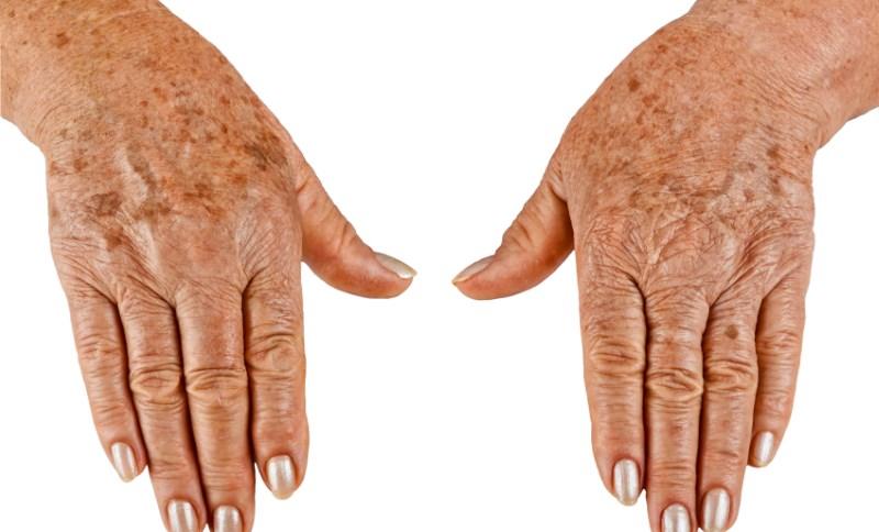 показания к биоревитализации рук