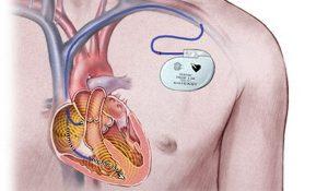 Вживление кардиовертера-дефибриллятора