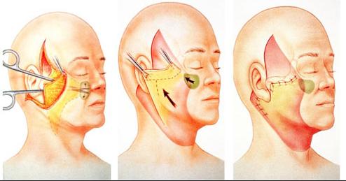 методика проведения операции