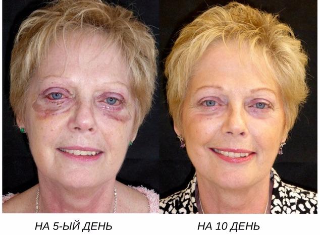 блефаропластика: сроки восстановления