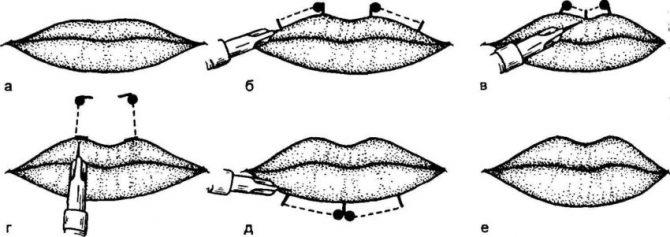 Техника проведения коррекции парижские губы