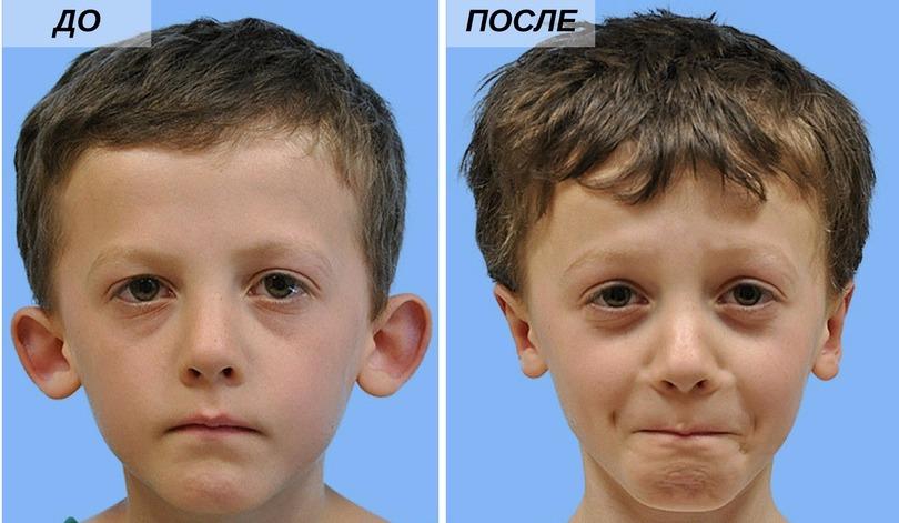 до и после лазерной отопластики