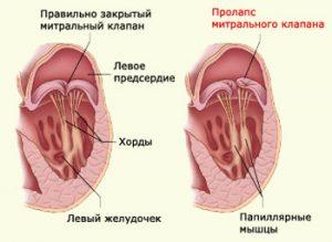 Пролапс митрального клапана 1 и 2 степени