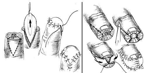 пластика пальцев кисти