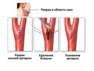 Хирургическое лечение стеноза сонной артерии