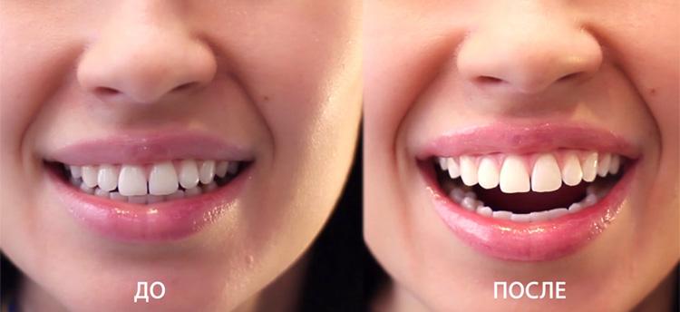 Результат процедуры отбеливания зубов