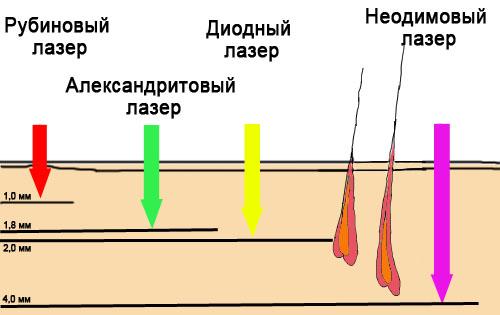 свойства лазеров