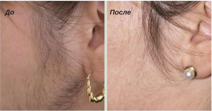 зоны для обработки кожи от лишних волос