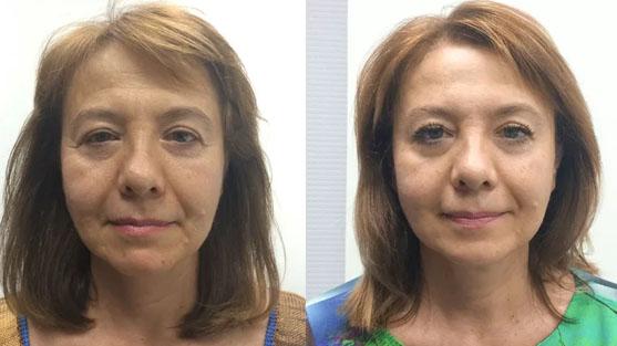 после массажа на лице