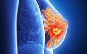 изображение больной груди