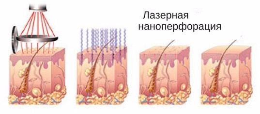 что собой представляет лазерная наноперфорация