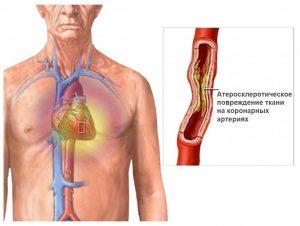 Первые симптомы стенокардии