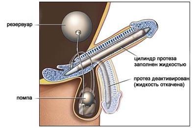 виды протезов полового члена