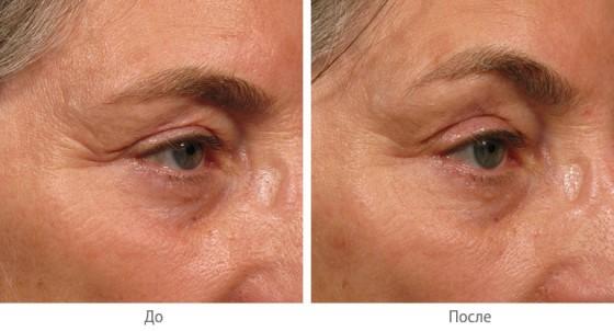 биоревитализация морщин на лице