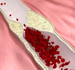 Степени артериальной гипертензии
