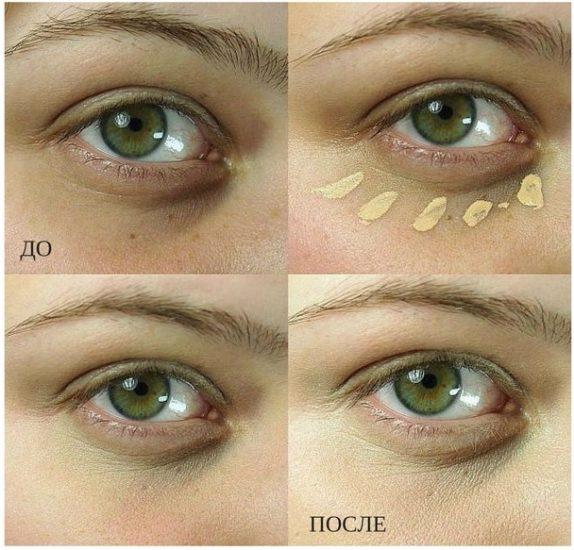 маскировка синяка под глазами