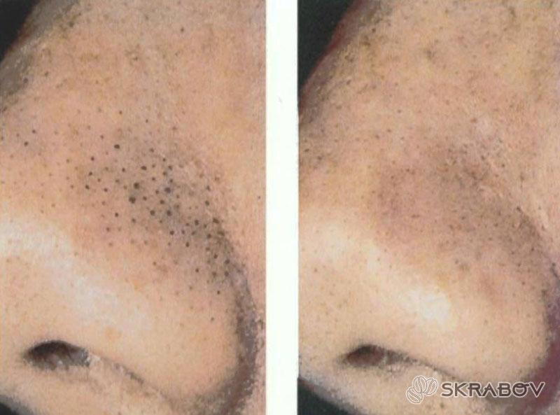 Как выдавить черные точки на носу: пошаговая инструкция 7-4