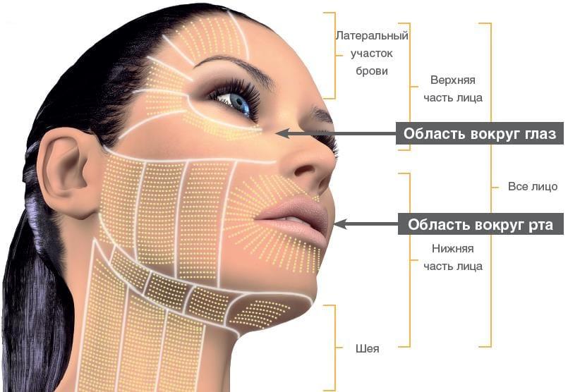 зоны воздействия ультразвуком на лицо