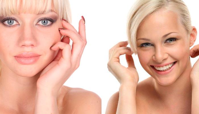 Крем от прыщей и угрей на лице: ищем самый лучший препарат