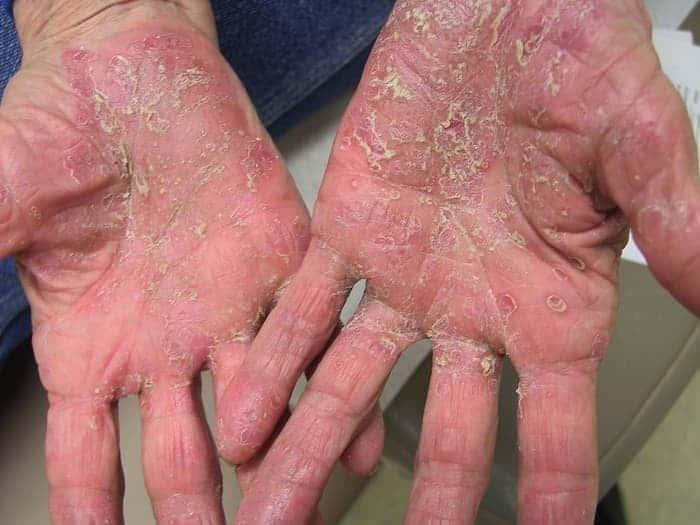 причины сухости пальцев на руках