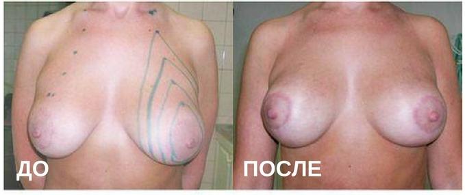 до и после:: птоз молочной железы