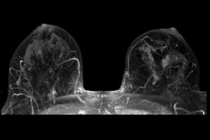 снимок рентгена груди