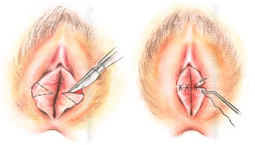 схема методики проведения операции