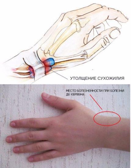 хирургическое лечение стенозирующего тендовагинита