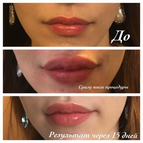 больно ли увеличивать губы
