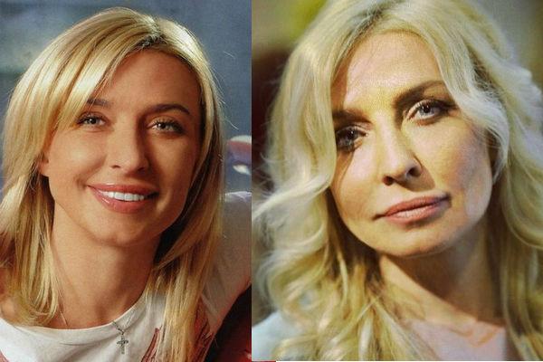 овсиенко до и после пластики лица