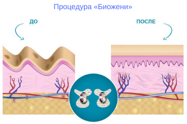 биожени