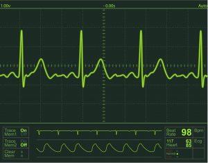 Нарушение ритма сердца на мониторе