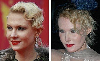 Литвинова до и после