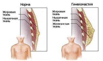 гинекомастия: причины, симптомы и лечение