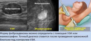 методы диагоностики заболевания