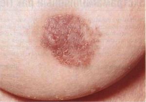 фото объекта болезни