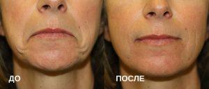 губы после ботокса