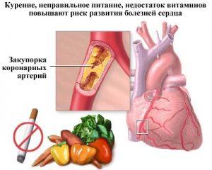 Предотвращение развития стенокардии