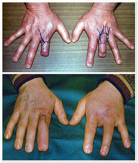 хирургия пальцев рук