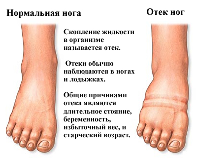 Мазь от отеков ног