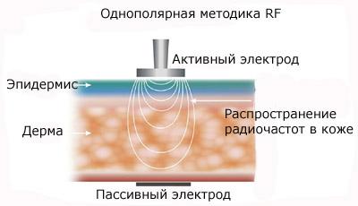 как влияет термолифтинг на кожу